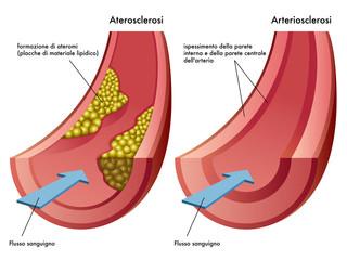 aterosclerosi & arteriosclerosi