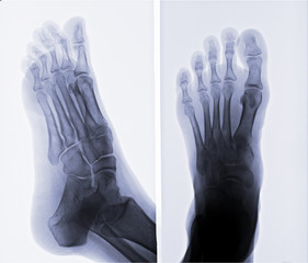 X-ray picture of foot