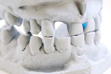 detailed macro of teeth molding
