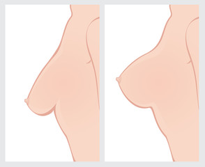 Breast Uplift before and after surgery