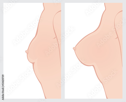 Breast enlargement before and after surgery