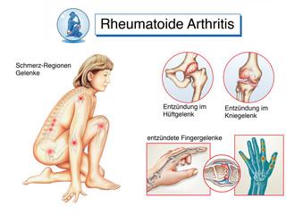 Gelenkentzündung.Rheumatoide Arthritis