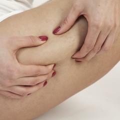 Cellulite am Oberschenkel überprüfen