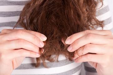 Broken hair