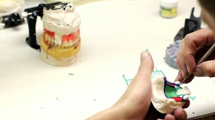 Dental technician modeling clasp prosthesis.