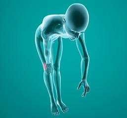 Corpo umano ginocchio raggi x dolore