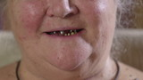 Toothless smile of an elderly woman