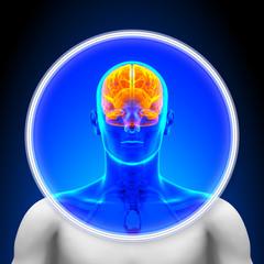Medical X-Ray Scan - Brain