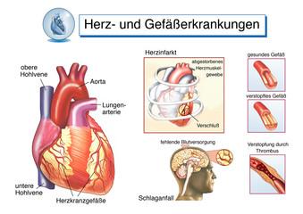 Herz- und Gefäßerkrankungen