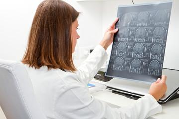 medico esamina una radiografia