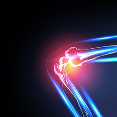 Painful Knee Close-up vector, easy all editable