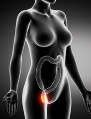 Female  HEMORRHOIDS concept x-ray lateral view