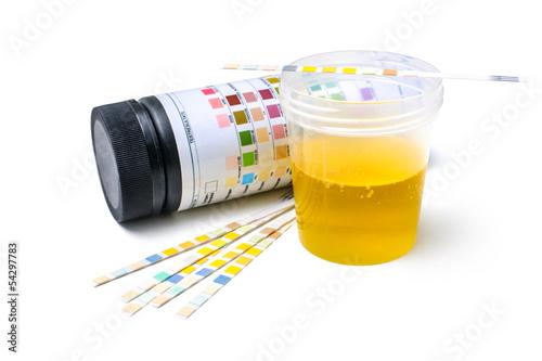 Leinwanddruck Bild Urinteststreifen