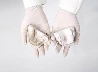 hands holding dental gypsum models, dental concept