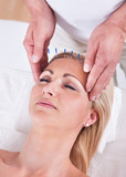 An Acupuncture Therapy In A Spa Center