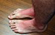 Sunburn feets
