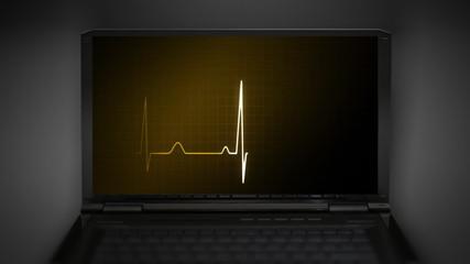 EKG monitor money graphic