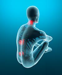 Uomo mal di schiena dolore raggi x scheletro