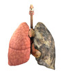 Lung Disease Before and After