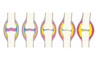 関節の変形過程