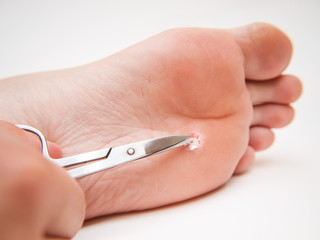 Callus under foot, treated with a pair of scissors