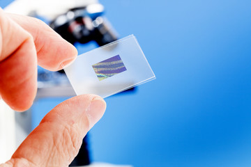 microscope slide with the preparation of cancerous tissue