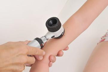Dermatologist examines child patient birthmark with dermatoscope