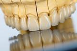 Fototapety Ceramic teeth - dental bridge