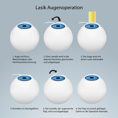 Lasik Augenoperation Funktionsweise