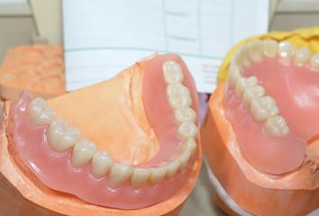 Dritte Zähne, Reparatur im Labor