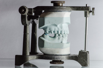 Dental Cast Mounted on Articulator