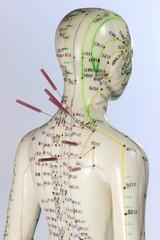 Akupunktur04