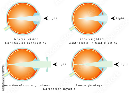 Myopia. Correction of short - sightedness