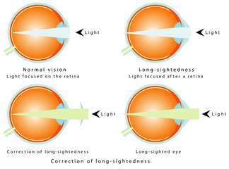 Hyperopia. Correction of long-sightedness