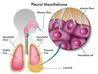 mesotelioma pleurico