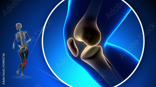 Pain in Knee - Xray concept on blue background