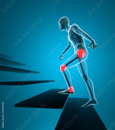 Uomo dolore articolazione salita scale ai raggi x