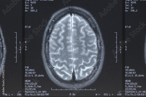 Röntgenbild von Kopf