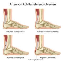 Probleme der Achillessehne