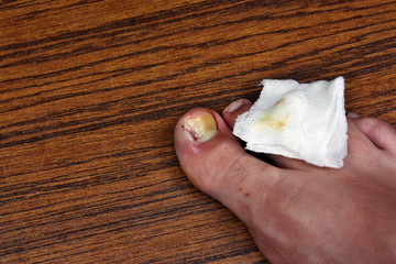 Ingrown toenail with dressing