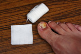 Treatment after the removal of ingrown toenail