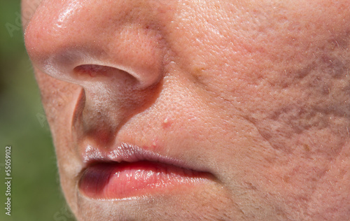 Problematic skin with acne