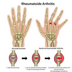 Rheumatische Arthritis (chronische Polyarthritis)