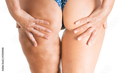 Woman body, half with cellulite. - 55164968