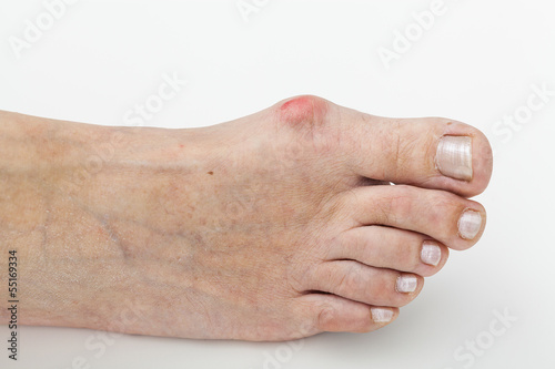 Bunion, isolated background