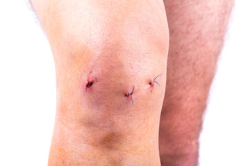 Man knee after arthroscopic surgery with stitches