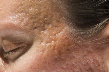 acne scars on temples