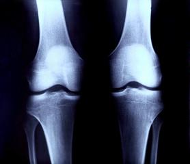 レントゲン 膝の関節 後部
