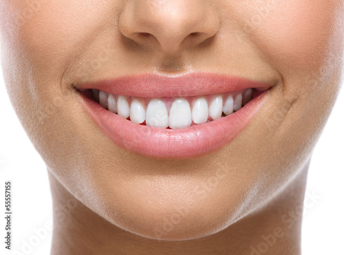 closeup of smile with white teeth