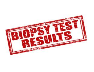 Biopsy Test Results-stamp